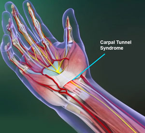 Carpal Tunnel Syndrom